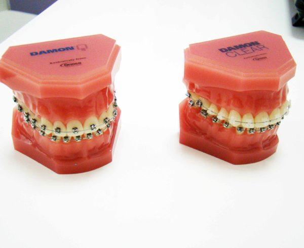 Imagen de la noticia Sistema Damon y Ortodoncia invisible en nuestra clínica dental
