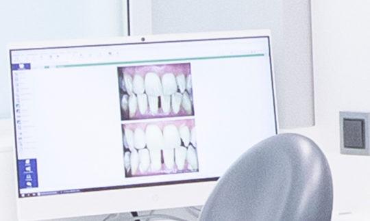 Ortodoncias en Clínica Dental Villava